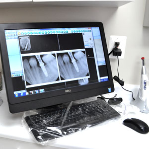 Digital dental x-ray in Dr. Mercando's office